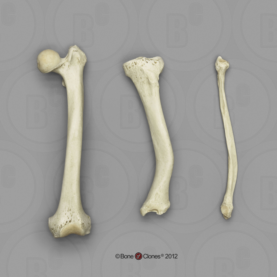 Human Femur Tibia And Fibula Rickets Bone Clones Inc
