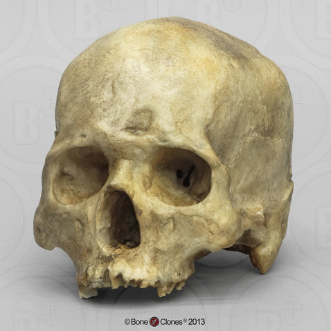 Human Male Skull With Healed Frontal Bone Fracture And Inca Bone