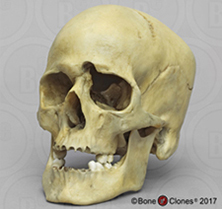 Human Male Skull, Medium Caliber Gunshot Wound