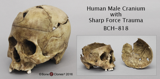 Human Male Cranium with Sharp Force Trauma