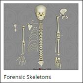 Bone Clones Incorporated