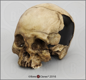 Human Male Cranium with Mid-facial Blunt Force Trauma