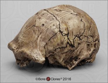 Dmanisi Homo erectus Skull 1