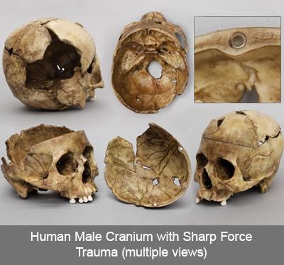 Human Male Cranium with Sharp Force Trauma