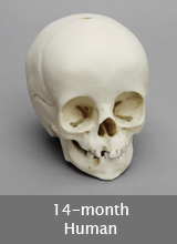 14-month-old Human Skull