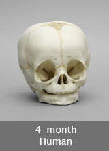 4-month-old Human Skull