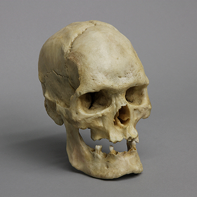 Acromegaly Skull