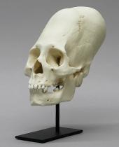 Cranial Binding