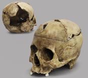 Sharp Force Trauma Skull