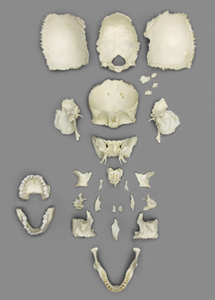 Disarticulated Human Skull-Adult