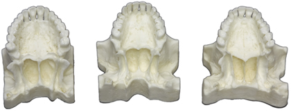 Comparative Maxilla Set