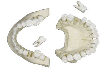 Adult Teeth