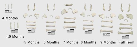 Fetal Osteology